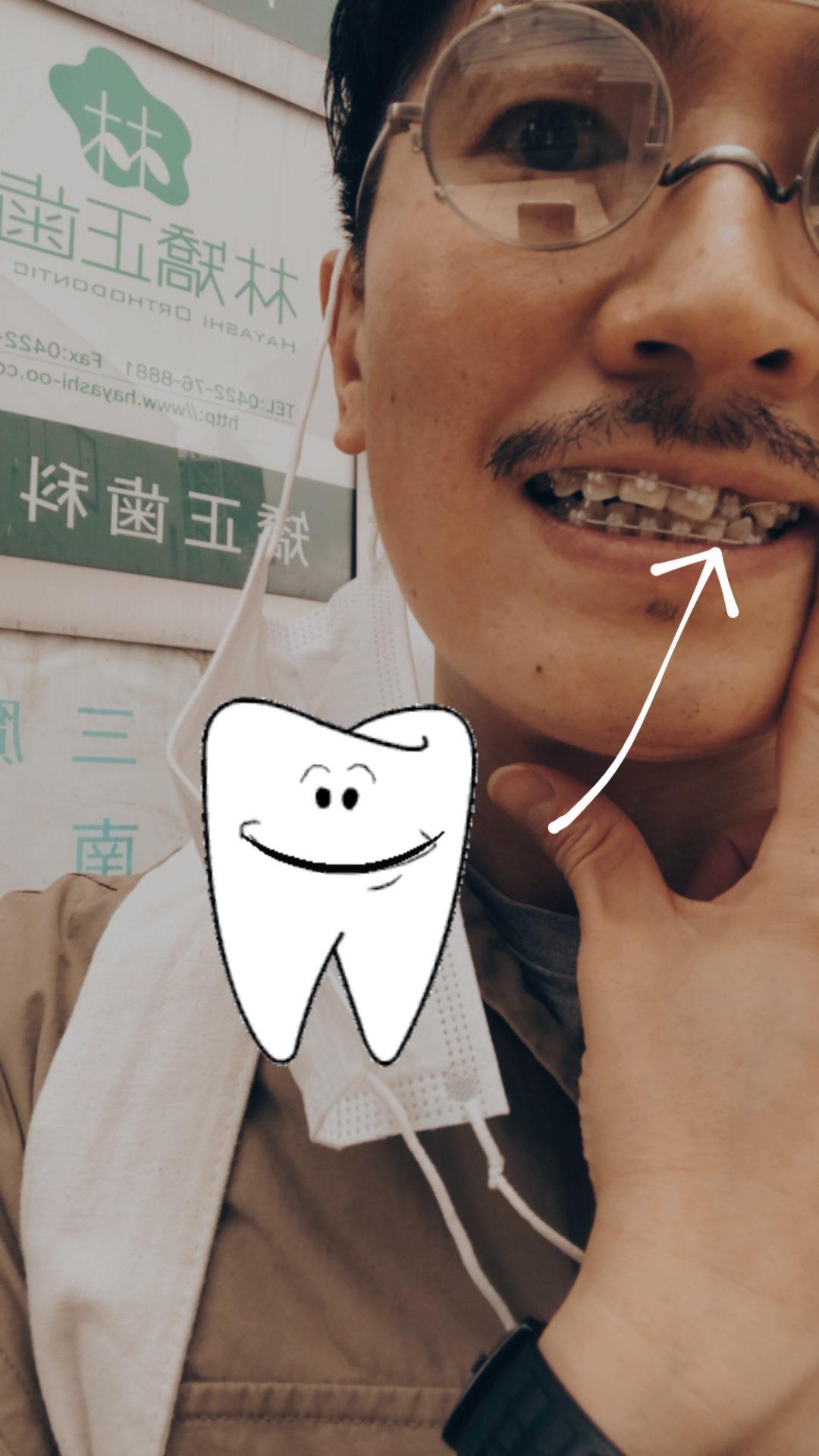 歯科矯正男子 山口祐亮 2年経過いたしました♪
