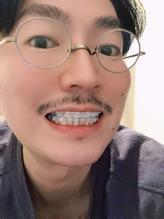 歯科矯正男子の記録